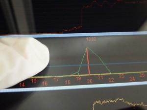 Latex- oder Nitrilhandschuhe im medizinischen Bereich behindern die sicher Eingabe nicht Bild: Danielson