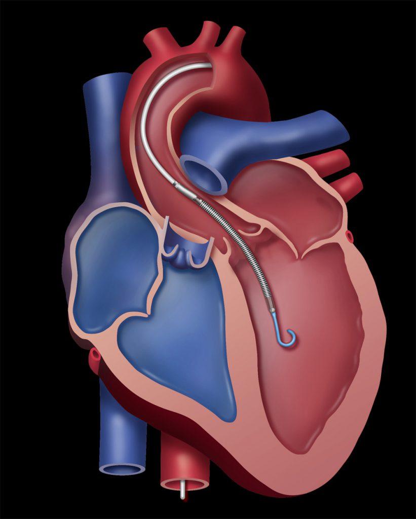 Lage des Pumpsystems im Herzen Bild: Abiomed
