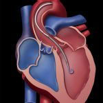 Lage des Pumpsystems im Herzen. Bild: Abiomed