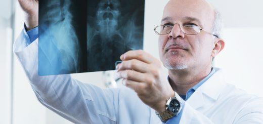 Röntgenapparate gehört heute zu den wirkungsvollsten Instrumenten in der medizinischen Diagnostik. Wenn es gilt, mit einer möglichst niedrigen Strahlungsdosis optimale Bilder zu erzeugen, müssen die Objektive allerdings hohe Anforderungen erfüllen. Bild: Stokkete / Shutterstock.com