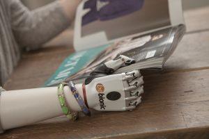Dank der individuellen Steuerung können die Finger zu insgesamt 14 verschiedenen Griffmustern arrangiert werden. Bild: Steeper