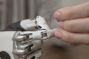 Die bionische Hand erleichtert viele Alltagsaktivitäten. Bild: Steeper