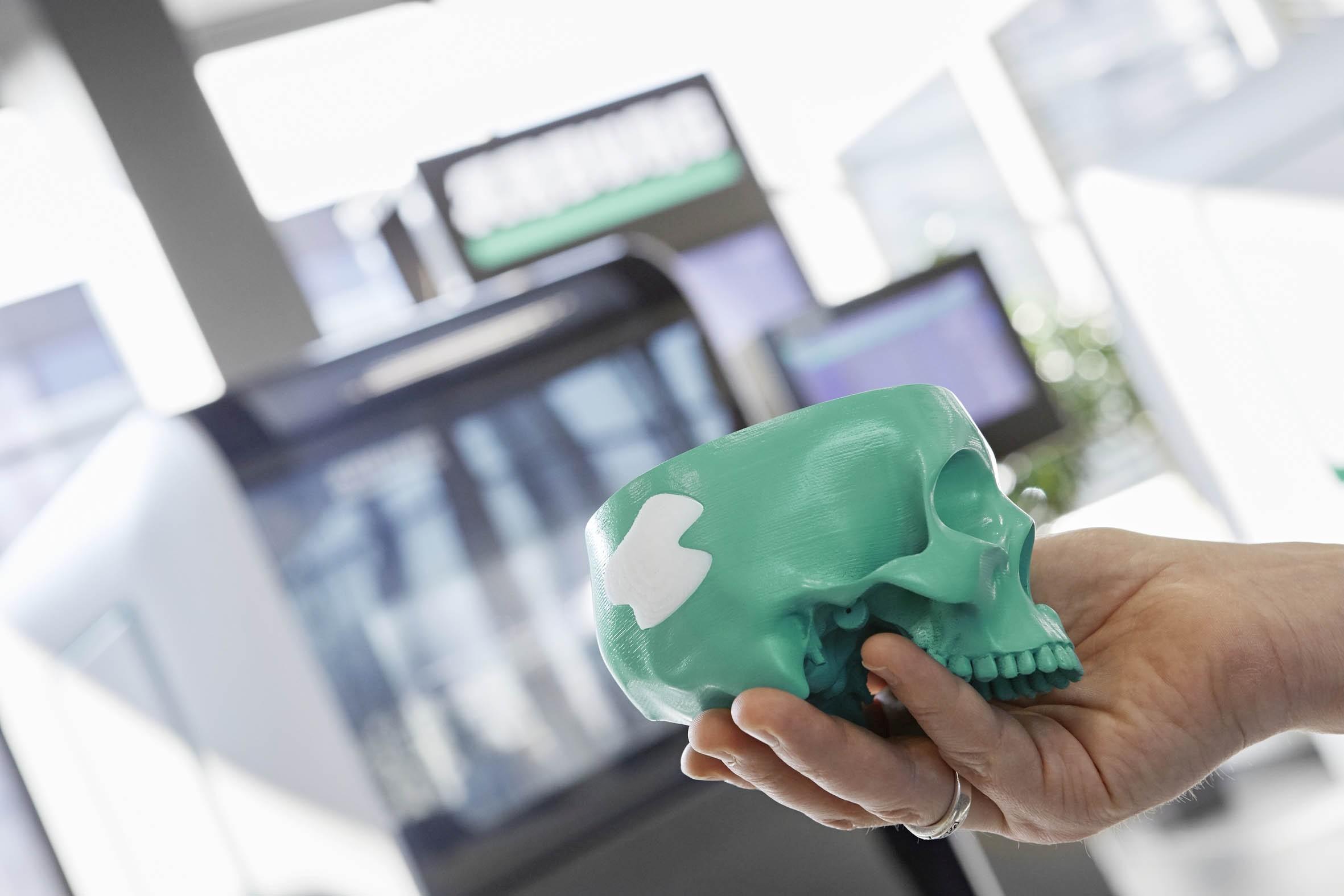 Ein wichtiges Anwendungsgebiet der additiven Fertigung sind individuell angepasste Implantate und Orthesen. Das medizinische PLA (Polylactid), das sich langsam im Körper abbaut, kann aktuell nur vom Freeformer verarbeitet werden. Bild: Arburg