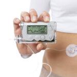 Mit einer Insulinpumpe können chronisch Kranke ihre Behandlung optimal steuern. Bild: click_and_photo - stock.adobe.com